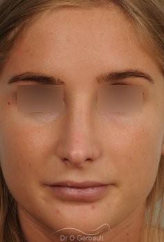 Pointe de nez large et ronde vue de face apres