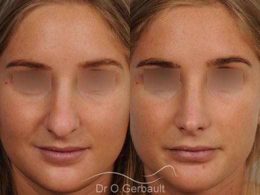 Pointe de nez large et ronde vue de face avant-apres