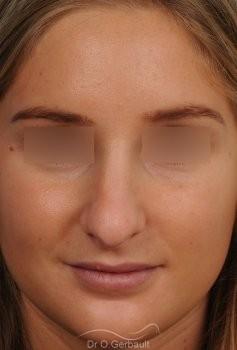 Pointe de nez large et ronde vue de face avant