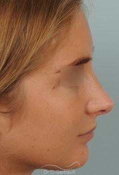 Pointe de nez large et ronde vue de profil apres