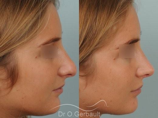 Pointe de nez large et ronde vue de profil avant-apres