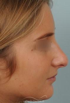 Pointe de nez large et ronde vue de profil avant
