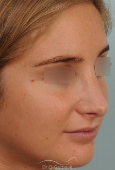 Pointe de nez large et ronde vue de quart apres