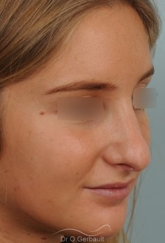 Pointe de nez large et ronde vue de quart avant