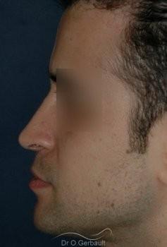 Pointe de nez tombante, Rhinoplastie homme vue de profil apres