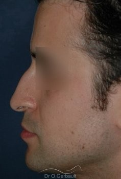 Pointe de nez tombante, Rhinoplastie homme vue de profil avant