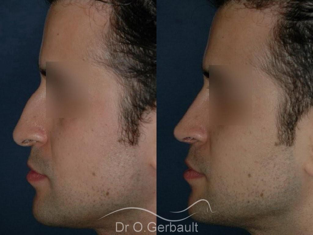 Pointe de nez tombante, Rhinoplastie homme vue de profil duo