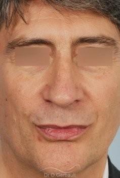 Pointe de nez tombante vue de face apres