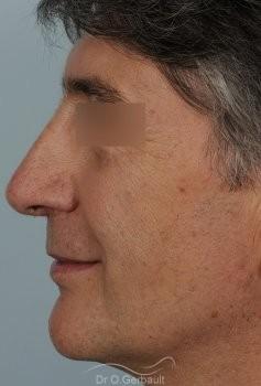 Pointe de nez tombante vue de profil apres