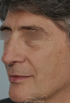 Pointe de nez tombante vue de quart apres