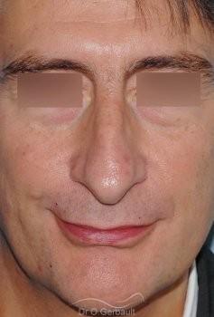 Pointe de nez tombante vue de face avant