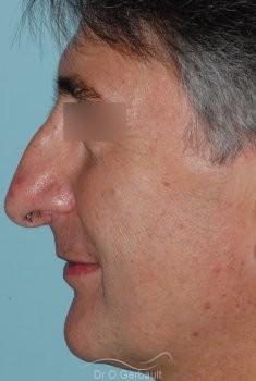 Pointe de nez tombante vue de profil avant