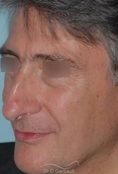 Pointe de nez tombante vue de quart avant