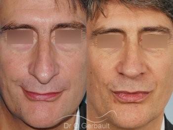Pointe de nez tombante vue de face duo