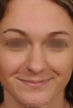 Pointe ronde et trop projetée vue de face avant