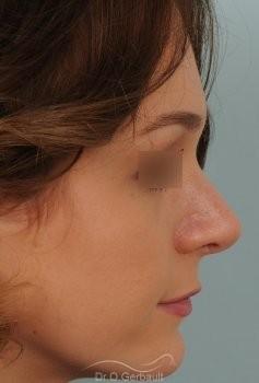 Pointe ronde et trop projetée vue de profil apres