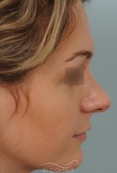 Pointe ronde et trop projetée vue de profil avant