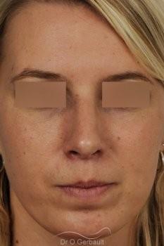 Profiloplastie, avancée du menton par prothèse vue de face apres