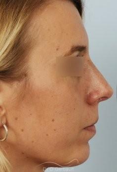 Profiloplastie, avancée du menton par prothèse vue de profil apres