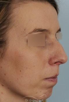 Profiloplastie, avancée du menton par prothèse vue de quart apres