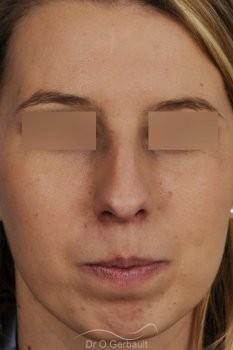 Profiloplastie, avancée du menton par prothèse vue de face avant