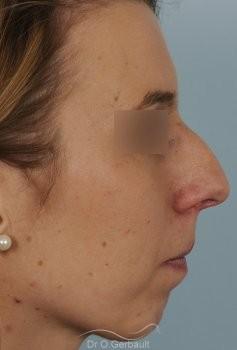 Profiloplastie, avancée du menton par prothèse vue de quart avant