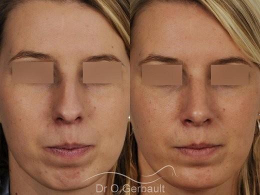 Profiloplastie, avancée du menton par prothèse vue de face duo