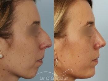 Profiloplastie, avancée du menton par prothèse vue de profil duo