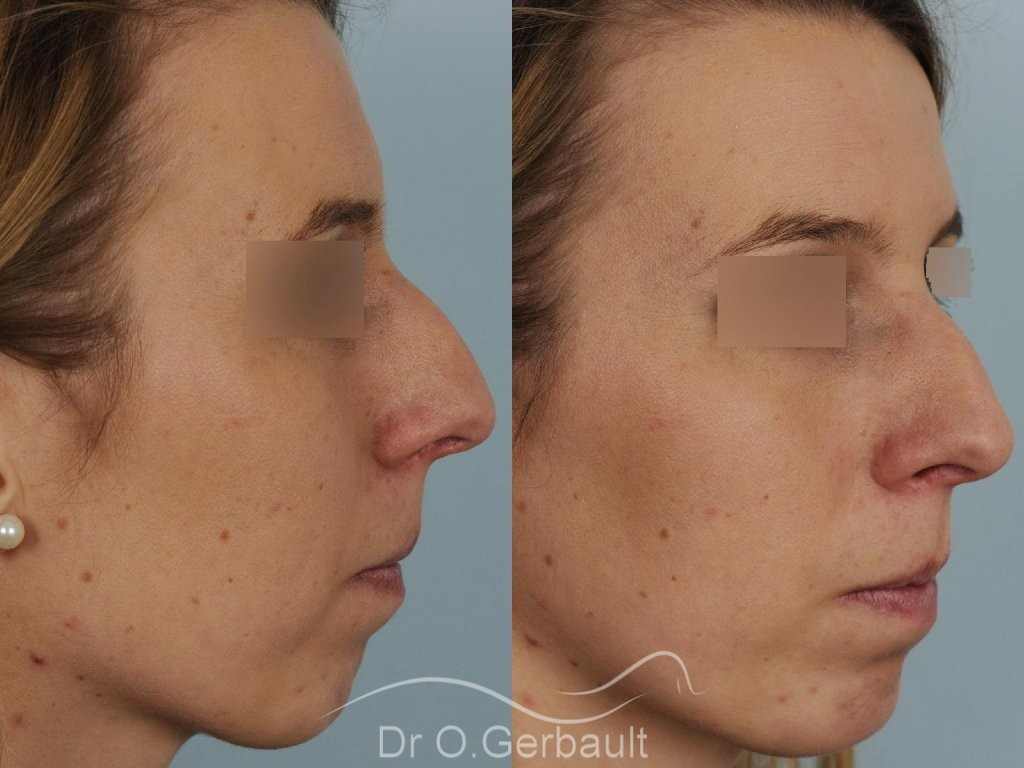 Profiloplastie, avancée du menton par prothèse vue de quart duo