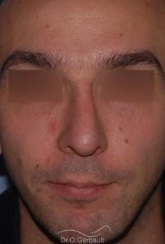 Profiloplastie : Rhinoplastie associé à une génioplastie vue de face apres
