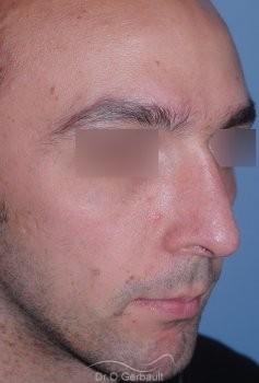 Profiloplastie : Rhinoplastie associé à une génioplastie vue de quart apres