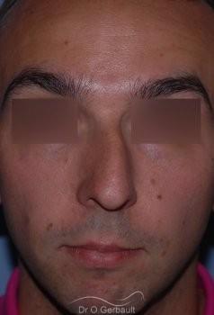 Profiloplastie : Rhinoplastie associé à une génioplastie vue de face avant