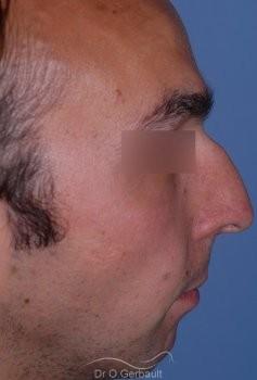 Profiloplastie : Rhinoplastie associé à une génioplastie vue de profil avant