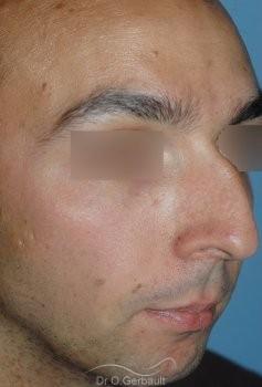 Profiloplastie : Rhinoplastie associé à une génioplastie vue de quart avant