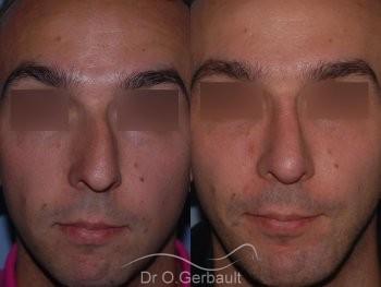 Profiloplastie : Rhinoplastie associé à une génioplastie vue de face duo