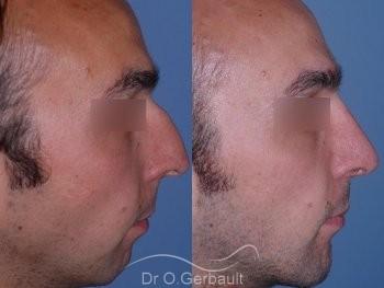 Profiloplastie : Rhinoplastie associé à une génioplastie vue de profil duo