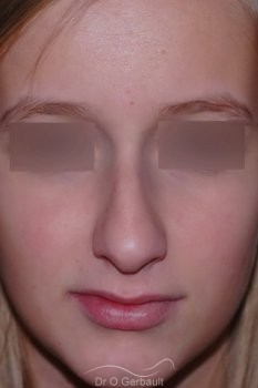 Profiloplastie, Rhinoplastie d'harmonisation vue de face avant