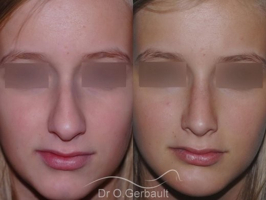 Profiloplastie, Rhinoplastie d'harmonisation vue de face duo