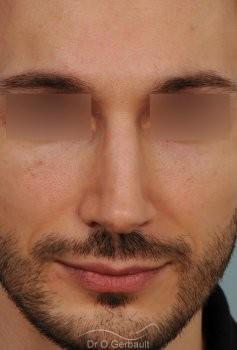 Profiloplastie : Rhinoplastie, génioplastie et avancée du front vue de face apres