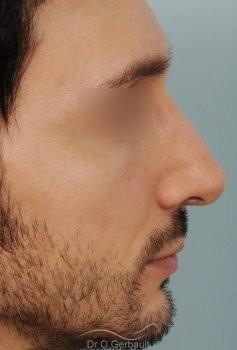 Profiloplastie : Rhinoplastie, génioplastie et avancée du front vue de profil apres