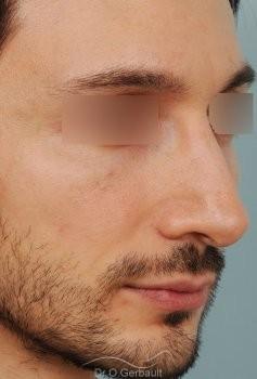 Profiloplastie : Rhinoplastie, génioplastie et avancée du front vue de quart apres