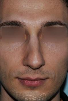 Profiloplastie : Rhinoplastie, génioplastie et avancée du front vue de face avant