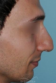 Profiloplastie : Rhinoplastie, génioplastie et avancée du front vue de profil avant