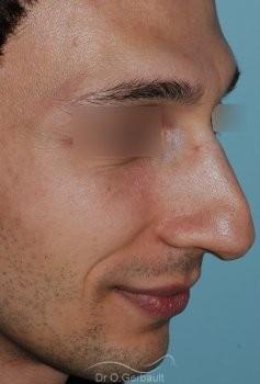 Profiloplastie : Rhinoplastie, génioplastie et avancée du front vue de quart avant
