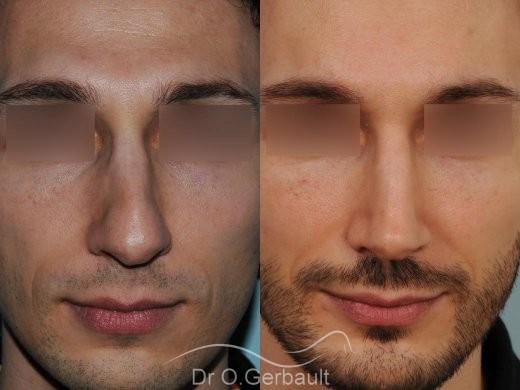 Profiloplastie : Rhinoplastie, génioplastie et avancée du front vue de face duo
