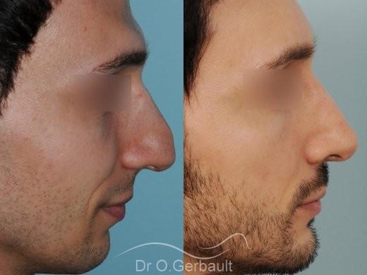 Profiloplastie : Rhinoplastie, génioplastie et avancée du front vue de profil duo