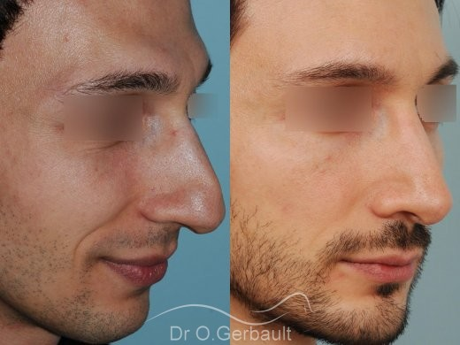 Profiloplastie : Rhinoplastie, génioplastie et avancée du front vue de quart duo