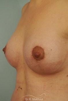 Prothèses mammaires pour seins tubéreux vue de face apres