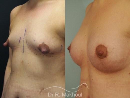 Prothèses mammaires pour seins tubéreux vue de face avant-apres