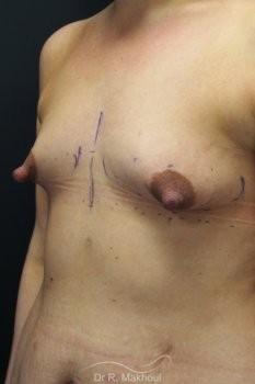 Prothèses mammaires pour seins tubéreux vue de face avant